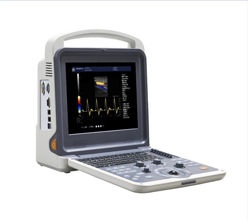 便携式全数字彩色多普勒超声诊断仪